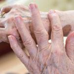 Pele do idoso precisando de cuidados